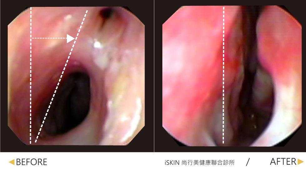 鼻中隔彎曲手術-此案例於其他醫學中心,接受鼻中隔彎曲治療後(左圖)仍呈現歪斜,且造成鼻黏膜沾黏的問題,因此術後鼻塞變的更加嚴重,經過陳鏘文醫師矯正後(右圖)鼻中隔已經變直、同時也解決鼻黏膜沾黏問題,不再飽受鼻塞之苦。