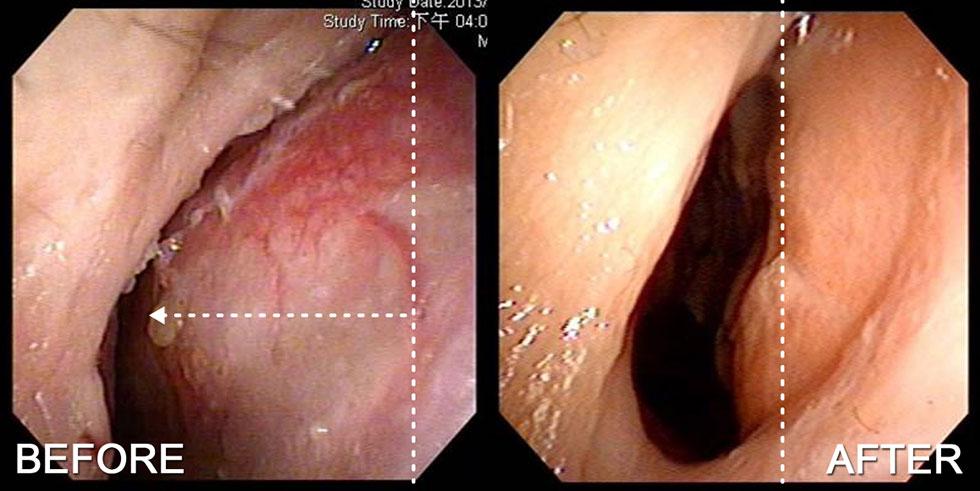 透過鼻內視鏡觀察,術前右側尾端鼻中隔往外偏斜幾乎靠近鼻孔緣,經鼻內開的方式,在術後1個月追蹤鼻中隔恢復至置中位置,傷口恢復良好
