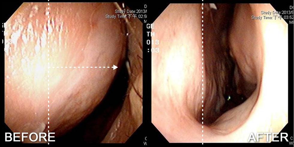 透過鼻內視鏡圖觀察,左側尾端鼻中隔往外側偏斜幾乎靠近側壁,經由鼻中隔矯正手術後鼻中隔軟骨恢復至置中