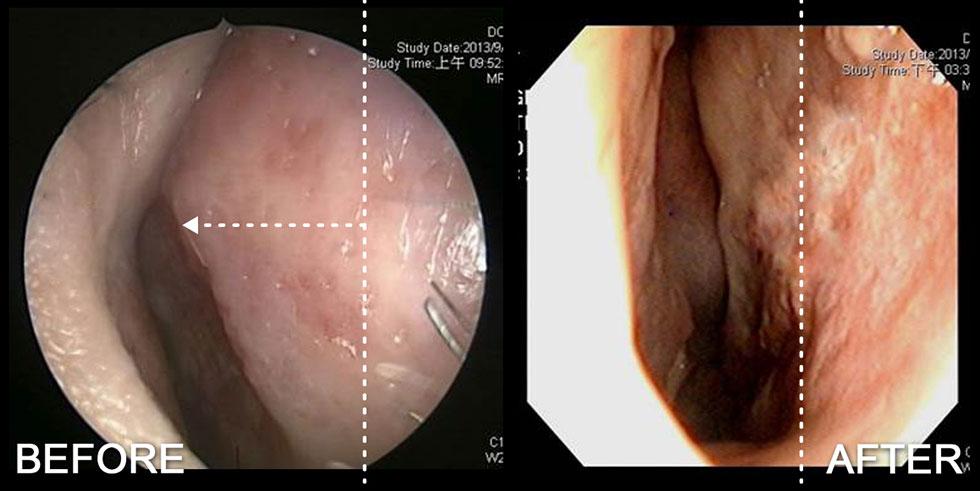 此案例是一個鼻外傷造成鼻中隔彎曲合併歪鼻的患者,術前內視鏡圖鼻中隔呈現向右類似骨刺狀,經手術後鼻塞症狀與外觀改善,鼻中隔軟骨恢復至置中位置