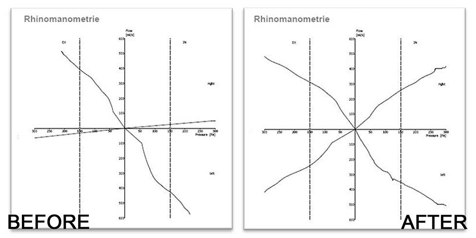 原本右側鼻阻力呈水平線,經由鼻中隔手術後,右側圖形恢復且兩邊對稱