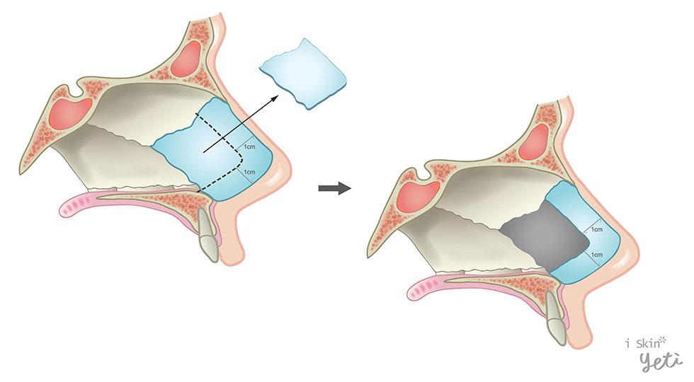 鼻中隔黏膜下切除術(Submucosal resection),是常見的鼻中隔矯正手術。在手術中要保留L型的鼻中隔軟骨( L strut),意思是在鼻中隔上部及尾端部分,留下厚度約1公分左右的樑柱,才有足以支持結構的力量,以防止塌鼻發生