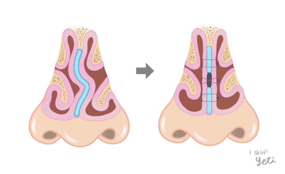 鼻中隔黏膜下切除術(Submucosal resection):