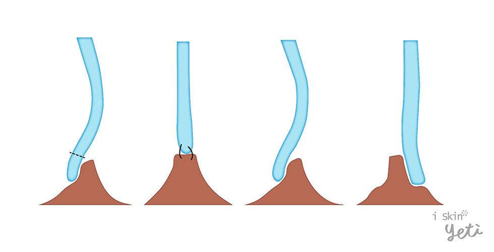 鼻中隔旋轉繞道術(Swinging door maneuver)是結構重建的技術,即將尾端鼻中隔軟骨由脫垂的一側,移到中間的位置並加以固定。另外有國外醫師Dr. Shah提出只需將軟骨從一側旋轉至對側即可達到相同的效果。