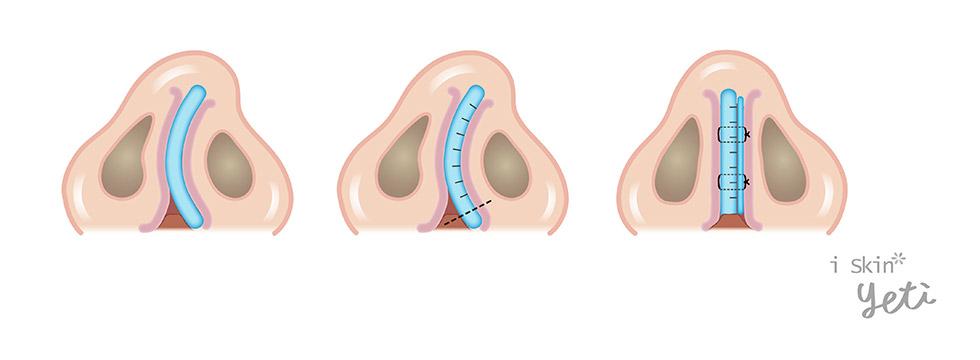 軟骨切痕縫合術(Scoring & Sutures)是利用將尾端的軟骨切痕及縫合(scoring & suture)方式來增加鼻中隔的直度與強度。必要時會再拿取出的鼻中隔軟骨(Harvested septal cartilage graft)做成支架板來加強鼻中隔的穩定度。