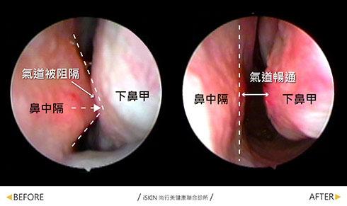 鼻中隔彎曲手術-嚴重鼻中隔彎曲與下鼻甲緊貼因此導致嚴重鼻塞難以呼吸,矯正後已明顯改善鼻閥的通暢度,原本的鼻過敏導致的鼻黏膜蒼白也變成正常的黏膜。