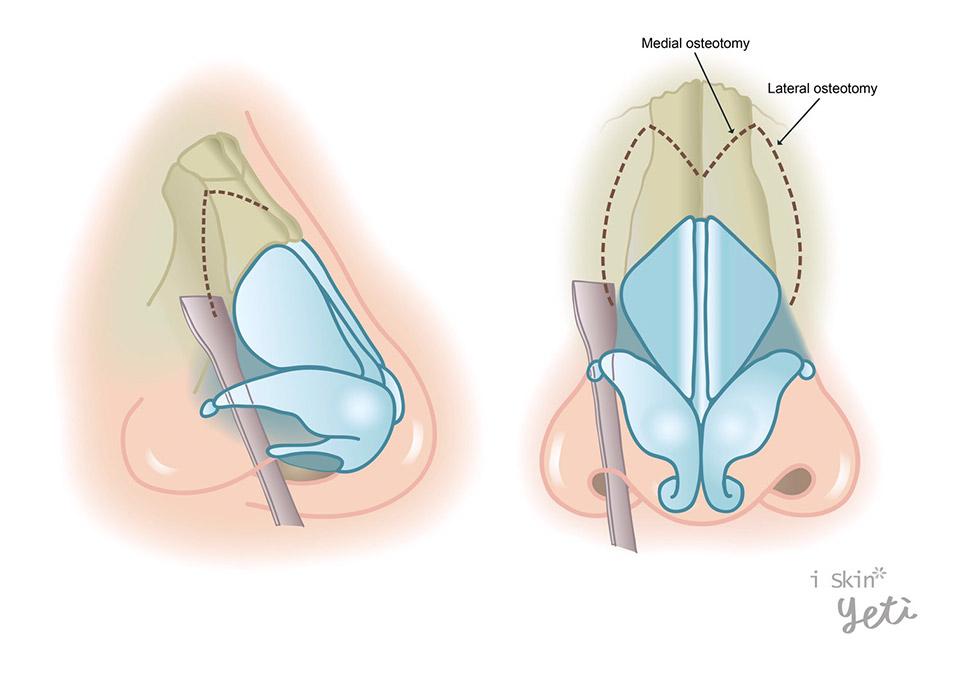 截骨術(Osteotomies)示意圖