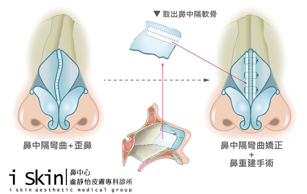 中段三分之一歪鼻治療在L型鼻中隔軟骨上製造小切痕,利用取出的鼻中隔軟骨(Harvested septal cartilage graft)當作重建的材料(Spreader graft) 與切痕縫合(Scoring & suture)以利塑形並加以固定。