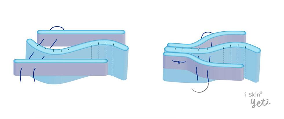 中段三分之一歪鼻治療,鼻中隔支架(Spreader graft)與切痕縫合( Scoring & suture)示意圖。