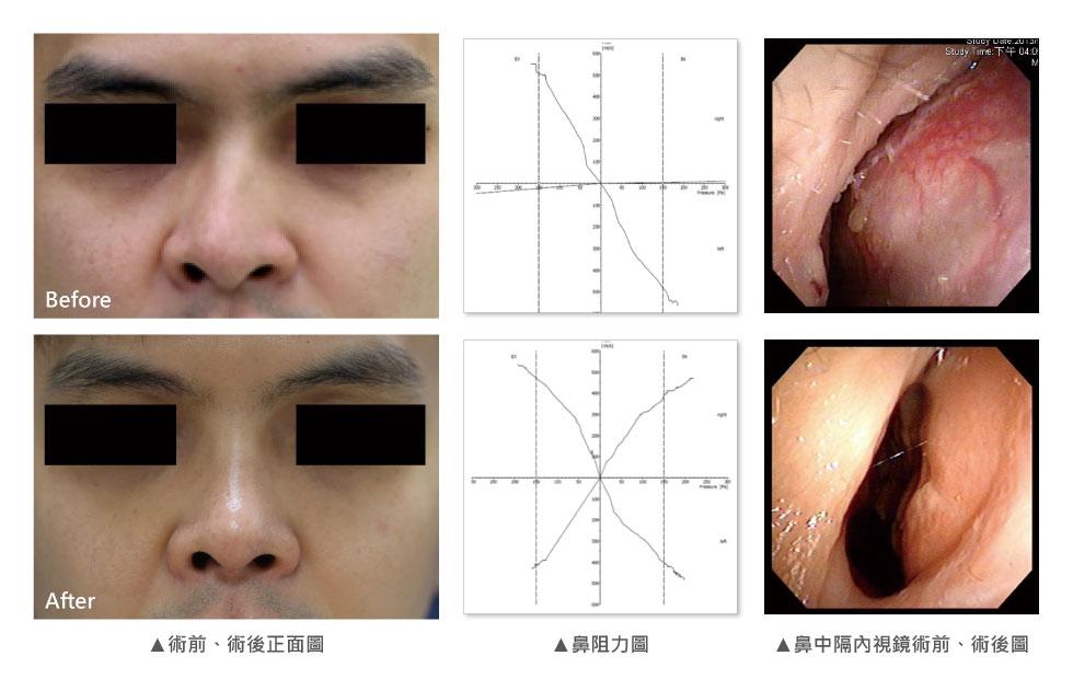 從小開始打球的F先生,因為某次比賽不小心面朝下跌倒,導致歪鼻,隨著年紀越大歪的越明顯,同時右側鼻孔幾乎無法呼吸。從外觀來看,F先生從上端鼻骨到鼻頭向右呈依直線歪斜,合併兩邊不對襯的鼻孔及左側鼻部凹陷。