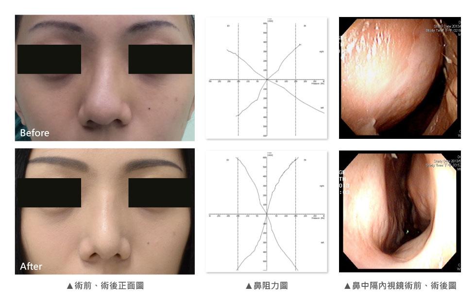 每個女生都愛美,D小姐也不例外。她特別羨慕韓國女星挺直小巧的鼻型,因為她的鼻頭偏大、又有明顯的歪鼻,尤其鼻背又有輕微駝峰,每次照鏡子看到鼻子,總是特別自卑。為了重建D小姐的自信心,經由我們團隊詳細的檢查後,發現D小姐鼻中隔軟骨呈現S型,我們同時做了左右兩側的截骨術,並利用特殊的磨骨器將輕微突出的鼻骨磨平,合併所鼻手術讓鼻頭變小。再利用本身的鼻中隔軟骨,作為中段與下段鼻小柱的重建材料(Spreader graft& columellar strut),術後效果讓D小姐大為驚豔,除了歪鼻變正之外,看起來更翹,鼻頭小巧迷人,最棒的是,全程手術都以D小姐本身的鼻中隔軟骨為材料,並未使用人工材料。