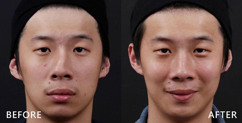 小林的鼻型明顯上1/3鼻骨向左歪斜而下2/3向自身右邊歪斜,曲度極大,是典型的「C型歪鼻合併鼻中隔彎曲」的案例,同時有駝峰凸出的問題。我們以歪鼻重建手術(Functional rhinoplasty),先用截骨術處理上方歪斜的鼻骨,並利用取出的鼻中隔軟骨(Harvested septal cartilage)來重建下端歪鼻的部分,接著再將凸出的駝峰給予消除與磨平,術後兩個月,鼻型線條變得直順自然。