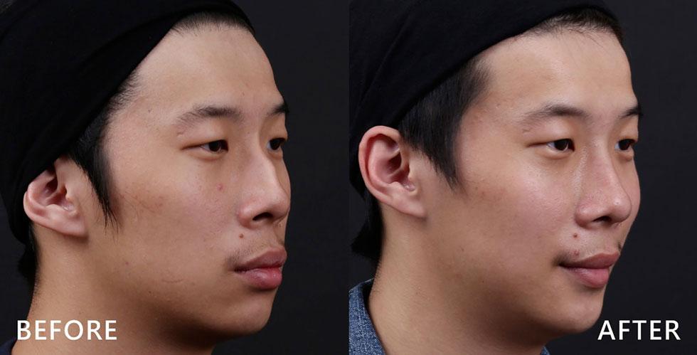 從側面看,小林的鼻型,駝峰凸起明顯,歪鼻重建的同時,幫他削減太過凸出的駝峰,利用他自身的鼻中隔軟骨來重建鼻型,鼻型線條變得直挺,更增添了一份親和力,無需取耳朵軟骨或肋軟骨,減少不必要的傷口,可以說是一舉數得。