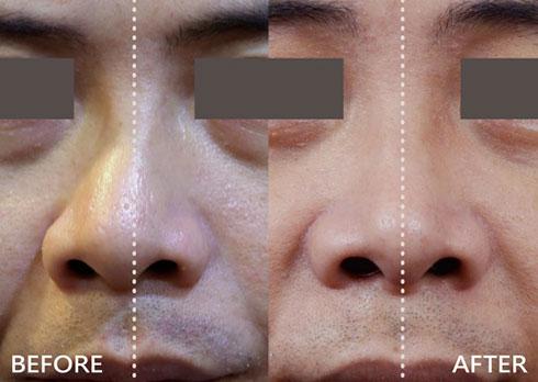 個案B的鼻型也像小林一樣,屬C型歪鼻合併鼻中隔彎曲,我們採取相似的歪鼻重建手術,術後明顯鼻子變直變正,給人感覺和善開朗許多!