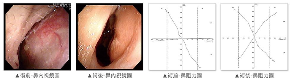 經由內視鏡檢查,發現右側尾端鼻中隔彎曲,幾乎貼近側壁;術前右側鼻阻力圖幾乎呈水平線,代表沒有氣流通過。術中發現鼻中隔扭曲變形、左上側軟骨凹陷萎縮;我們團隊進行鼻部結構拆解及鼻中隔成型手術,利用取下來的鼻中隔軟骨進行重建(Batten Graft)。術後恢復良好,鼻中隔置中,氣流通暢。