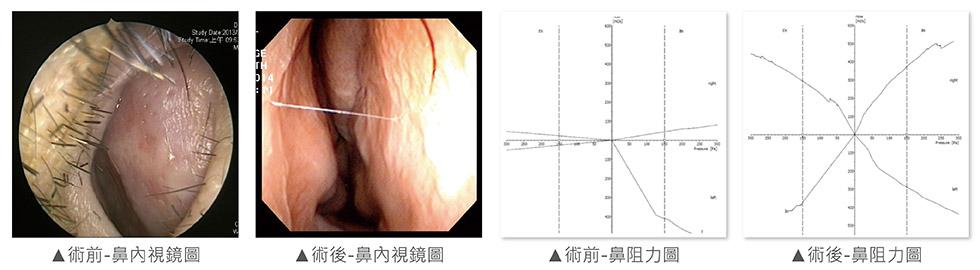 透過內視鏡檢查後,發現右側尾端鼻中隔彎曲。故右側鼻阻力圖貼近水平線,使得氣流極度阻塞,代表鼻塞嚴重。故進行鼻中隔成形手術,術後鼻中隔恢復置中,鼻腔空間恢復正常,呼吸更順暢。