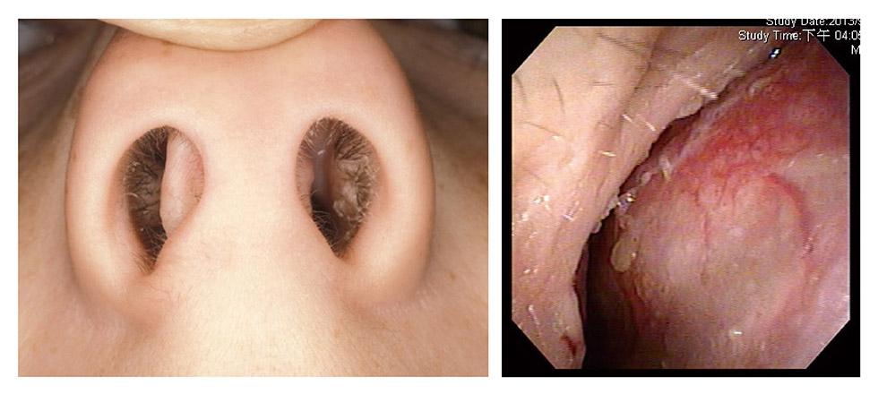 透過仰視圖及內視鏡圖可明顯看出,除了鼻孔不對稱外,又合併尾端鼻中隔彎曲,造成患者呼吸不順,鼻塞嚴重。(左圖取自網路)