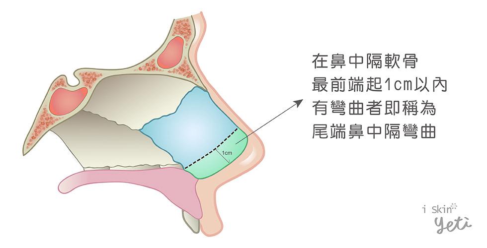 尾端鼻中隔彎曲圖示,綠色區塊為尾端鼻中隔軟骨,若此處有彎曲情況,則稱為尾端鼻中隔彎曲。