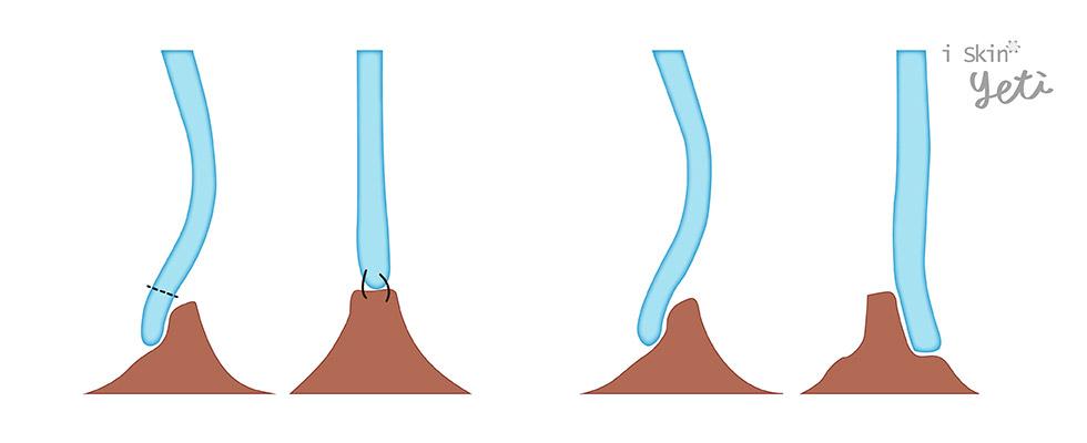 鼻中隔旋轉繞道術(Swinging door maneuver)是結構重建的技術,即將尾端鼻中隔軟骨由脫垂的一側,移到中間的位置並加以固定。另外有國外醫師Dr.Shah提出只需將軟骨從一側旋轉至對側即可達相同的效果。