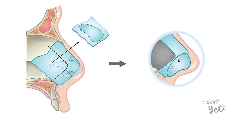 尾端軟骨延展板(Caudal septal extension graft)示意圖。