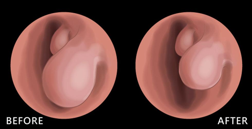 透過鼻內視鏡圖觀察,術前(圖左)肥厚的下鼻甲組織幾乎塞滿整個鼻腔通道,使氣流無法暢通;術後(圖左)下鼻甲體積縮減,讓氣流能順利通過鼻腔。