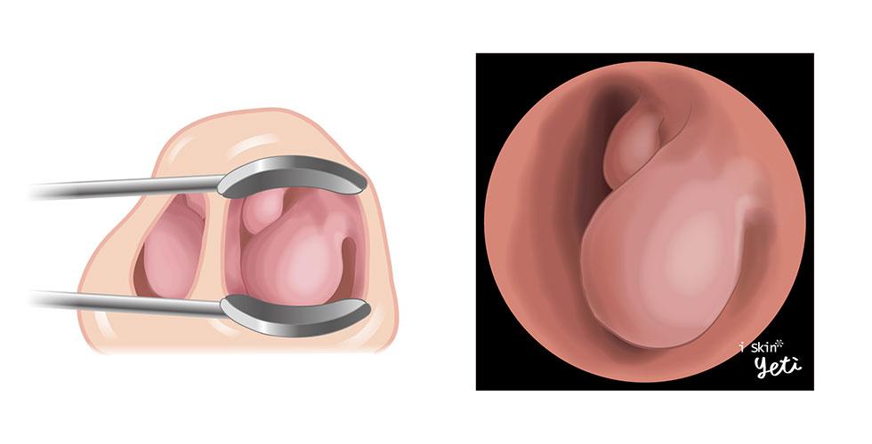 圖左為下鼻甲肥厚示意圖,圖右為下鼻甲肥厚內視鏡圖呈現
