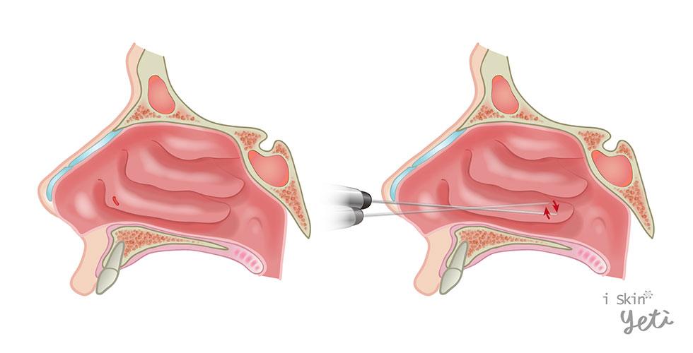 先製造一個小切口,再深入肥厚的下鼻甲組織,使其變成小碎塊後再進行抽吸,達到減少下鼻甲體積的作用。</p>                     <p>以上為下鼻甲肥大術式介紹,至於採用何種技術,仍需專業醫師判斷並執行,才會得到有效治療。慢性肥厚性鼻炎須找到造成慢性發炎的原因,進而加以預防。若病因是「過敏性鼻炎」,則可透過避免接觸過敏原來預防;若病因是「血管運動性鼻炎」,則可加強運動來改善體質,且須避免溫度劇烈變化加以預防。