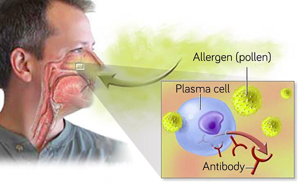 過敏原如花粉等,進入體產生漿細胞抗體,造成過敏性鼻炎