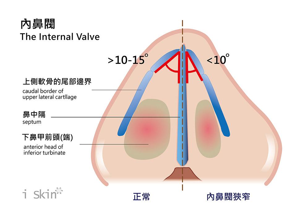 內鼻閥的上側軟骨與鼻中隔的夾角,小於10~15度角,就可視為內鼻閥狹窄。