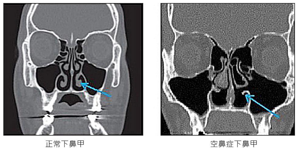 圖為正常人的鼻腔,與空鼻症鼻腔電腦斷層圖,圖中(如箭頭所示)可看到正常鼻腔有三對鼻甲,而空鼻症的鼻腔下鼻甲幾乎所剩無幾。