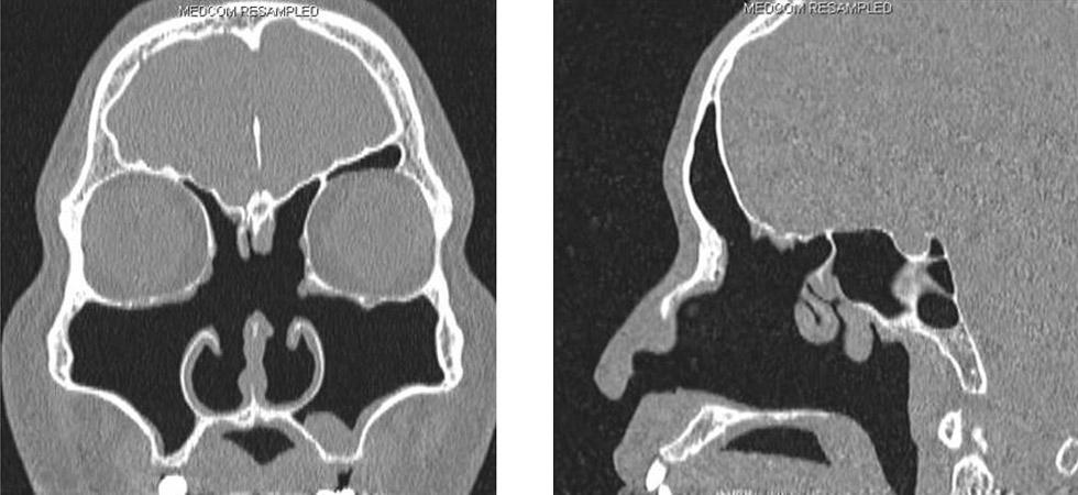 一個40歲非過敏性鼻炎男病人,接受四次的鼻竇鼻炎手術,CT顯示明顯的缺乏下鼻甲、中鼻甲,而上鼻甲也只剩下一點點。