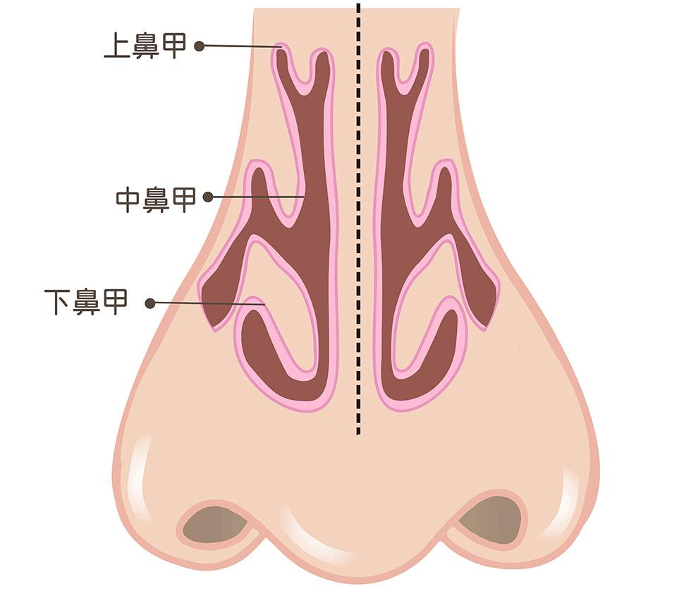 經由傳統下鼻甲部分切除術(Submucosal turbinectomy)修整後(圖左至右),下鼻甲體積縮減,讓呼吸更加自在暢通。
