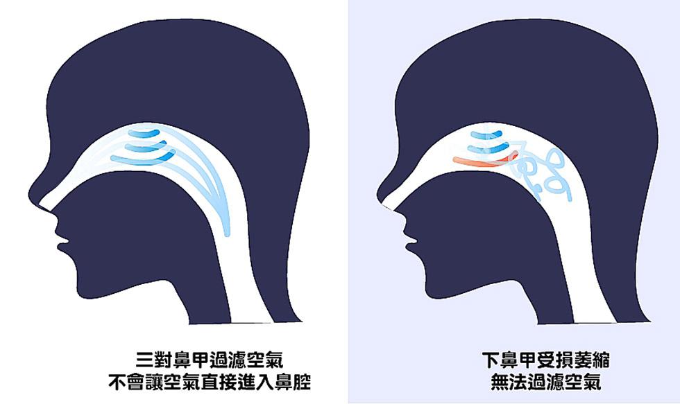 下鼻甲原處理著大量的空氣進入,但受損後影響感知氣流功能,就像一條道路沒有提供車道線可以遵循而造成交通大亂,導致更阻塞。