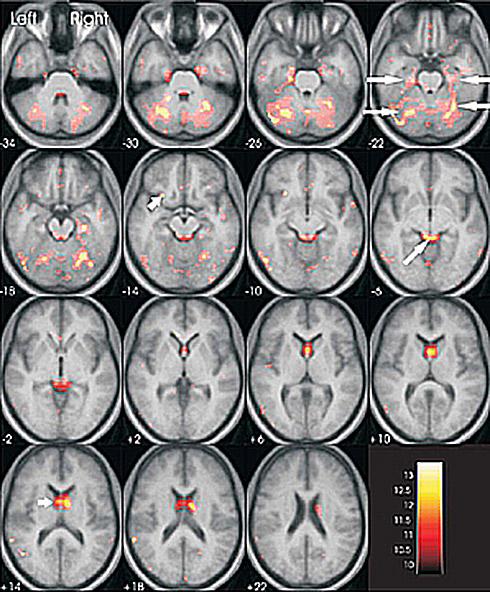 圖左為空鼻症患者腦部核磁共振