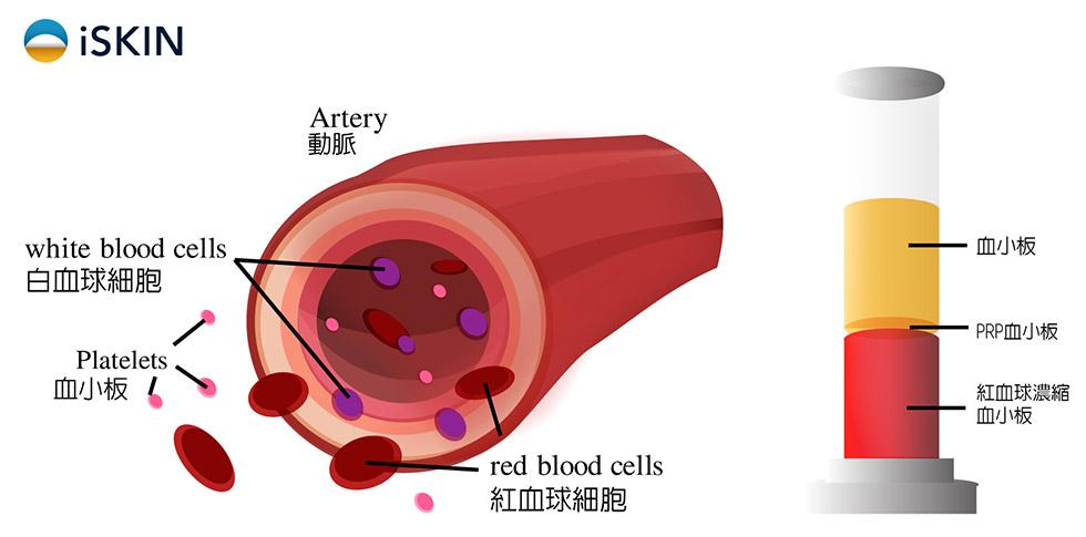 PRP (platelet-rich plasma)注射
