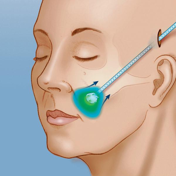 五爪鉤多利用在額頭或兩頰等處拉皮之用