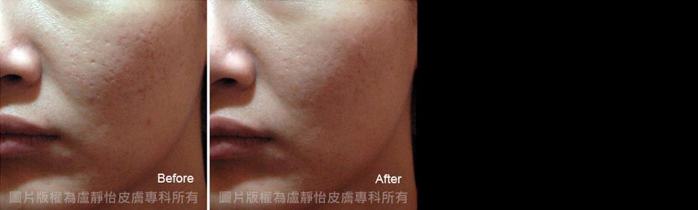 Mixto微米二氧化碳雷射改善臉部凹洞 (以上案例皆經過當事人同意露出)