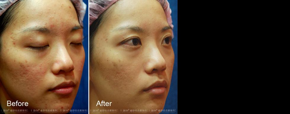 多層次飛梭雷射治療深淺不一的凹洞痘疤 (以上案例皆經過當事人同意露出)