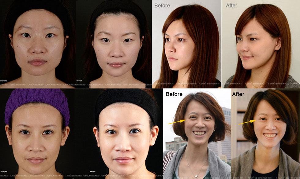(左上) 除皺瘦臉針瘦小臉實例;(右上) 玻尿酸填補山根、下巴實例;(左下) 3D聚左旋乳酸‧聚左旋乳酸液態拉皮實例;(右下) 除皺瘦臉針去除眼角紋實例