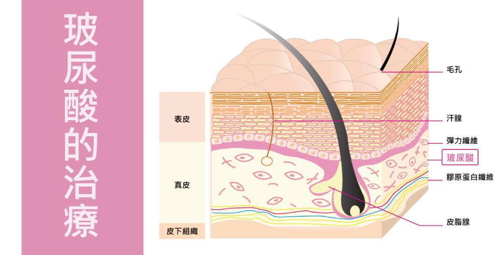 玻尿酸的治療,填補皺紋的凹陷
