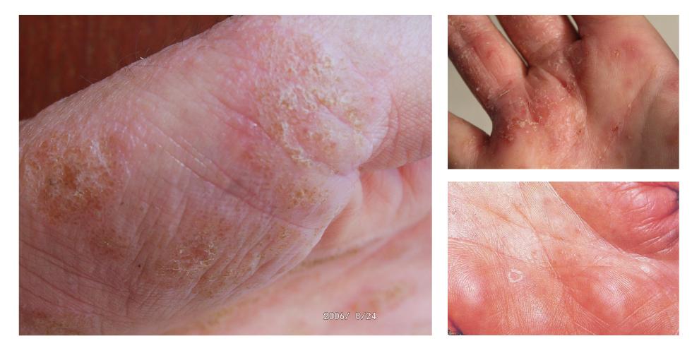 汗皰疹各種症狀。