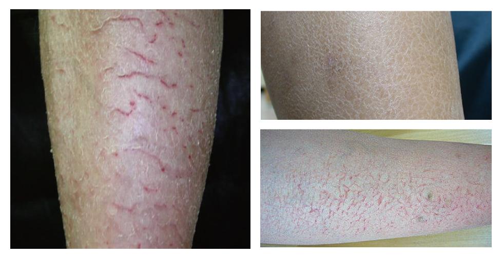 缺脂性皮膚炎的各種症狀。