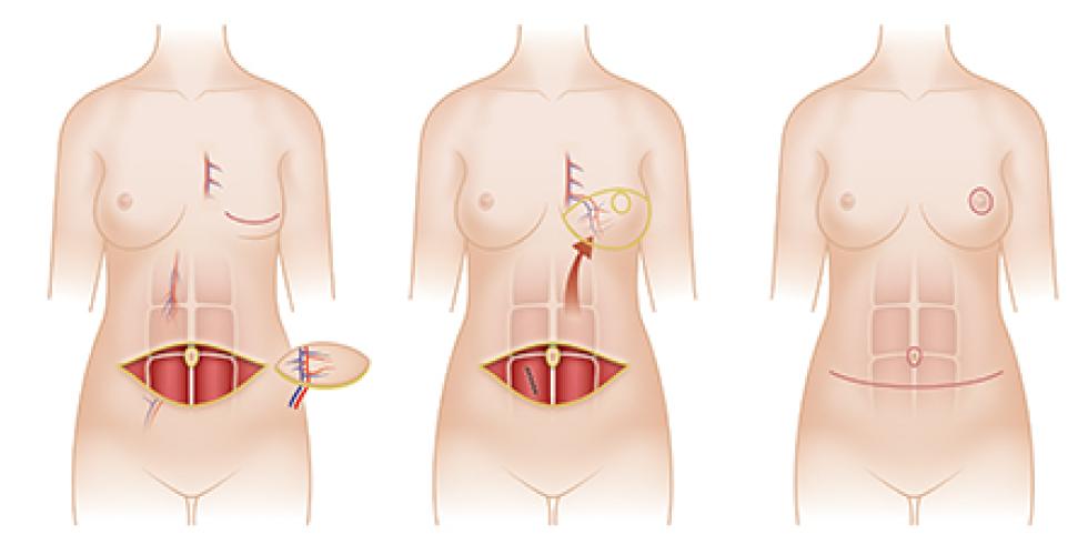 局部皮瓣手術示意圖。