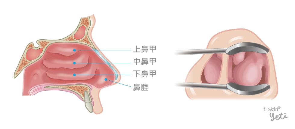 左圖為正常鼻腔構造,有三對鼻肉組織;右圖是下鼻甲肥大時,會阻塞鼻腔的呼吸管道,造成鼻塞困擾。