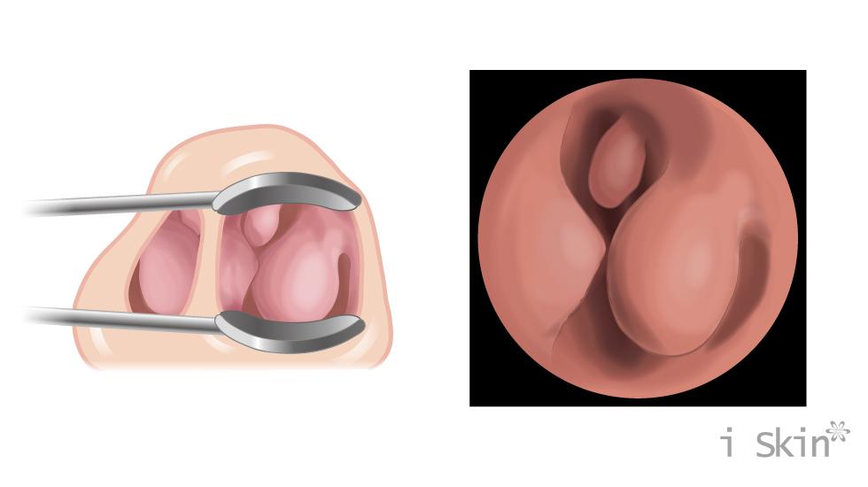 當鼻腔當重度阻塞時,嚴重影響呼吸順暢度。需諮詢專業鼻科醫師,以鼻內視鏡檢查,找出鼻塞的病因。
