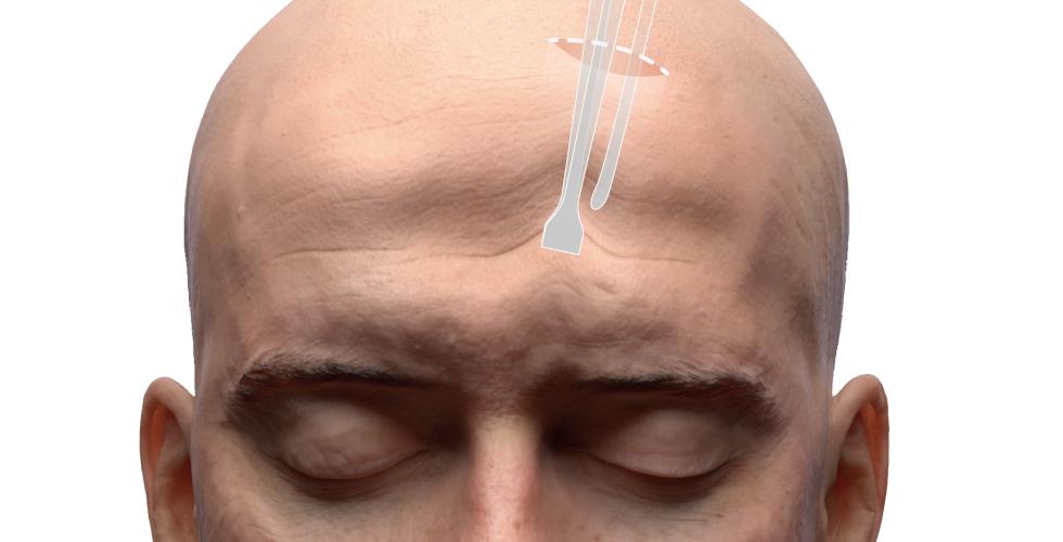 內視鏡拉皮手術,傷口約一公分