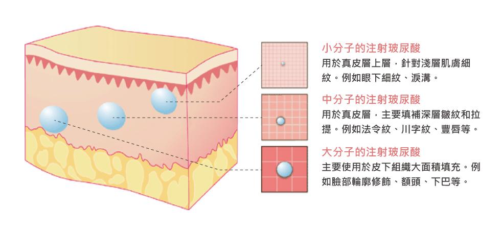玻尿酸分為大分子、中分子與小分子。要填充面積較大的部位,像是雙頰與太陽穴、蘋果肌,需要黏稠性較高的大分子玻尿酸;若像是淚溝及細紋,則需要小分子玻尿酸,以免結成小團塊。