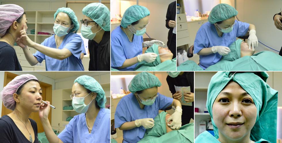Lily在完成左側下臉輪廓的4D埋線拉提後,在術中拍攝左右臉的比對~是不是很神奇!