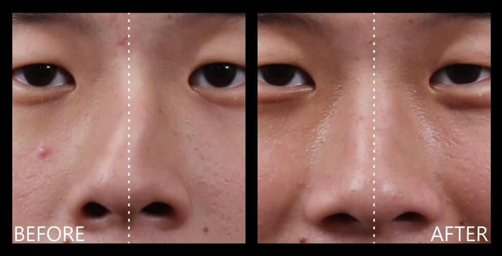Amazing! 我歪斜的鼻型,經過iSkin歪鼻重建手術,明顯變直變正了!