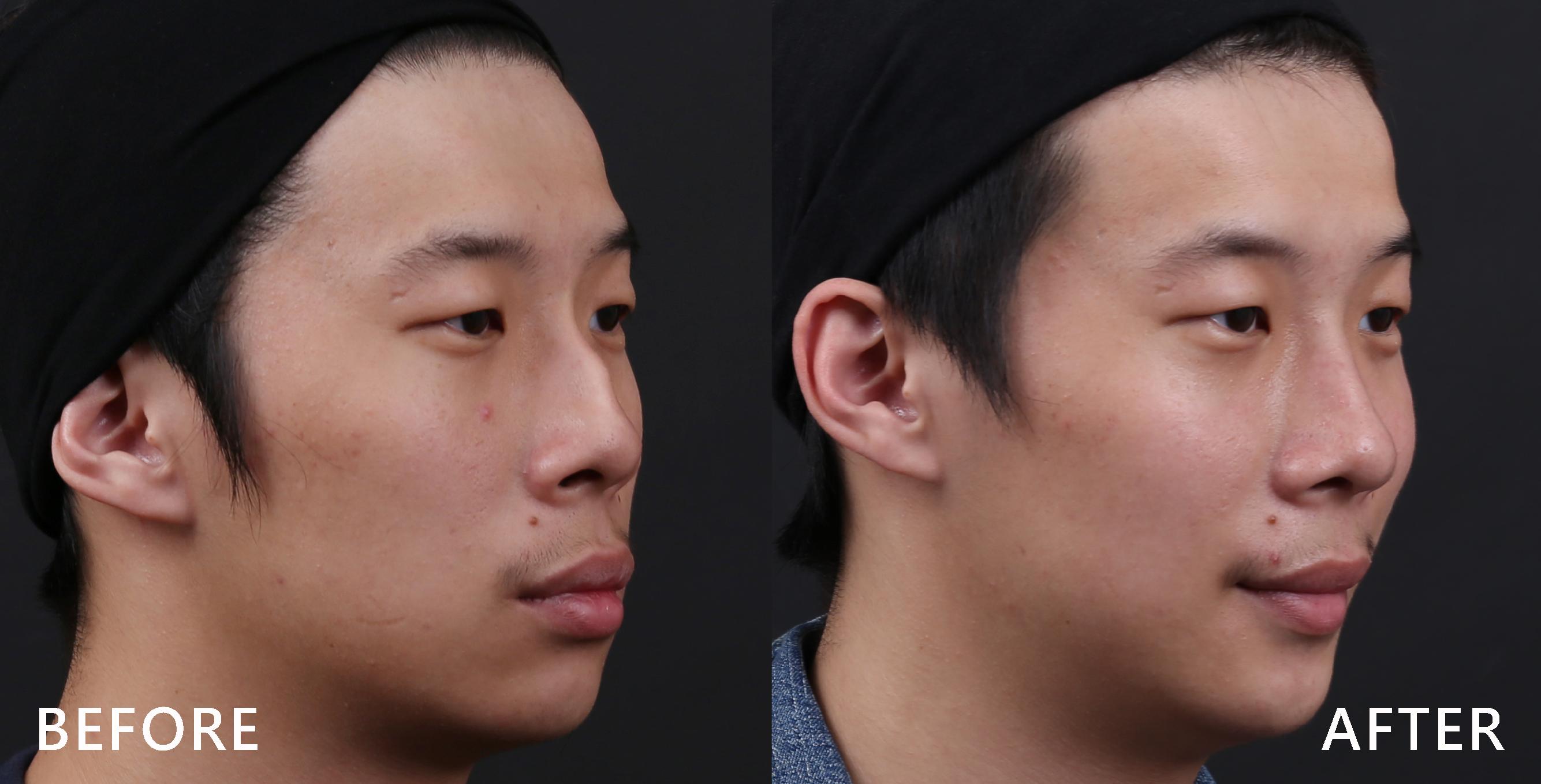 我的鼻型駝峰明顯凸出,經過陳醫師的巧手,線條變直順,整體感覺很協調!